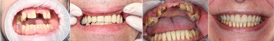 базальная имплантация пример в Самаре